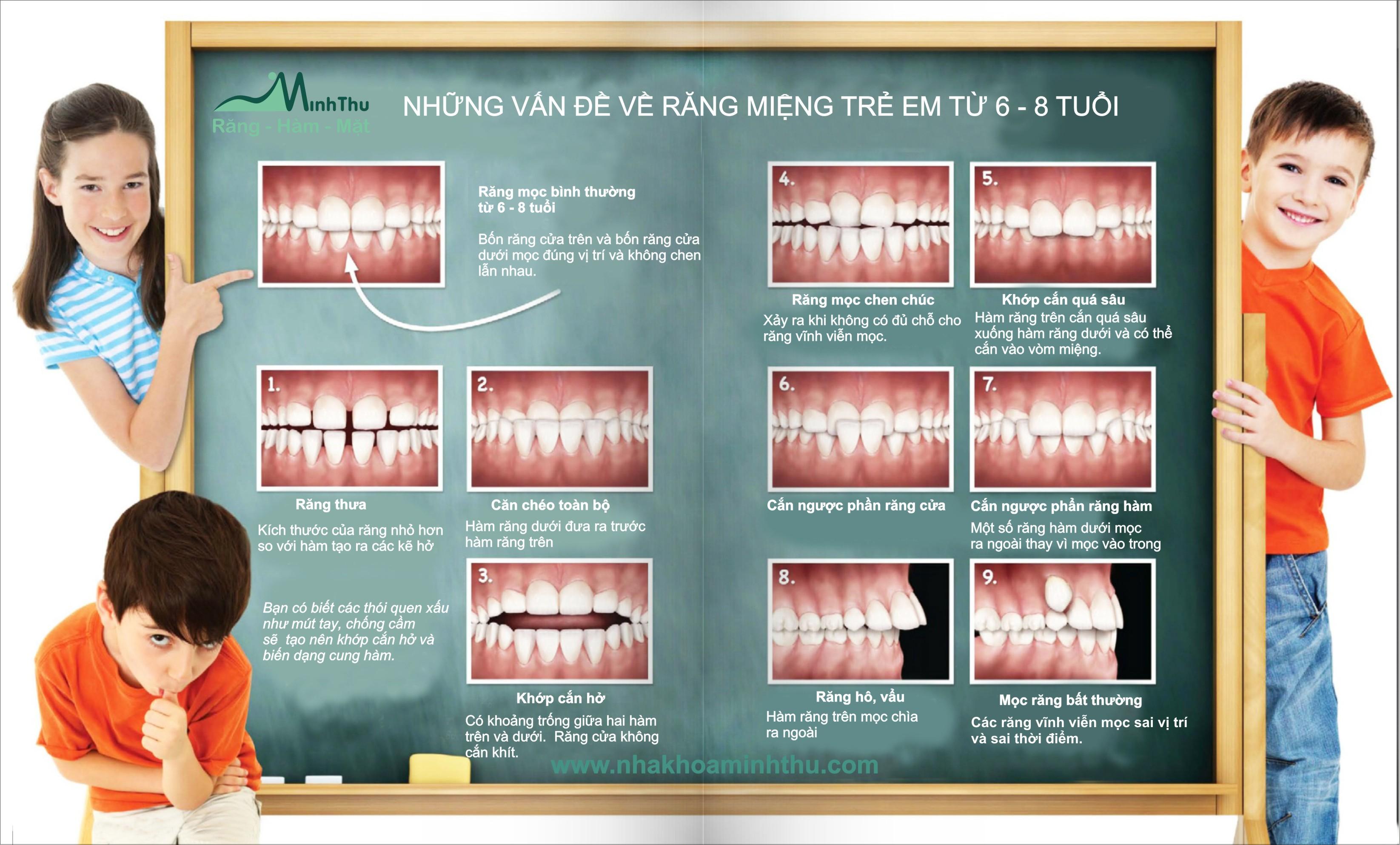 Việc chỉnh nha sớm là giai đoạn chuẩn bị đem lại hiệu quả cho giai đoạn chỉnh nha sau khi răng vĩnh viễn đã mọc đầy đủ mà chúng ta vẫn quen ...